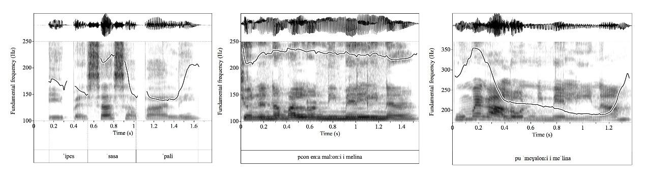 Voice wave graphs